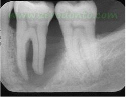 """Hopeless tooth"" treatment 3"