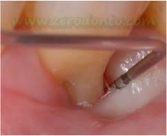 """Hopeless tooth"" treatment 4"